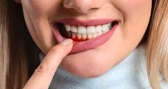 treat inflamed gums naturally