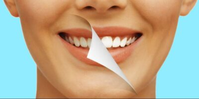 how to whiten teeth naturally (1)