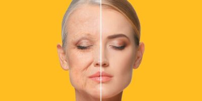 How to slow down the skin's ageing process (1)